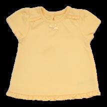Sárga masnis póló (56-62)